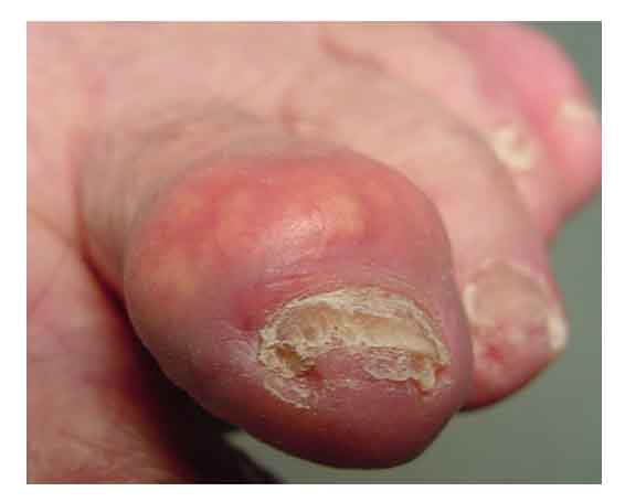 What does gout on feet look like?
