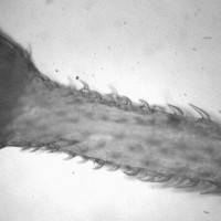 "Intelligent Design Award: The Spiny-Headed Worm Parasite ""Pomphorhynchus laevis"""