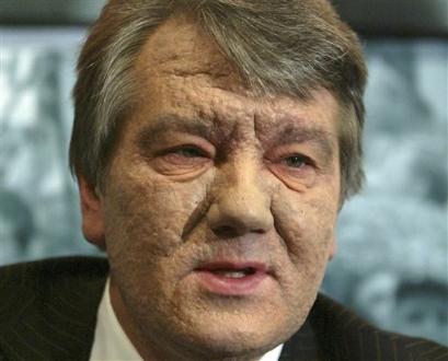yushchenko1