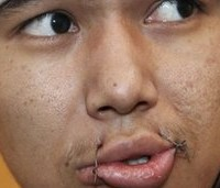 PHOTOS: Over 1,000 Kyrgyz Prisoners Sew Their Lips Shut In Protest, 7000 More On Hunger Strike
