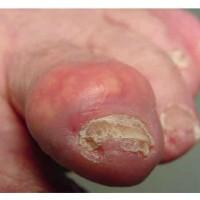 God Awful Morning: James Frey Is Killing My Toe